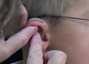 Cómo insertar y sacar el molde auricular